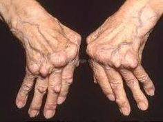 MINDBLOWING!! Did you know that the most potent ‎arthritis ‎cure ever discovered has been purposely kept hidden from us for the last 50 years… all because Big Pharma couldn't profit from it! Recommend everyone take the time to read this astonishing article…
