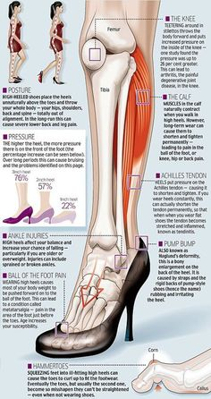 High heel dangers, this is what bodyworkers are constantly working out in womens' feet and calves.