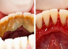 Original Pinner says: Be Your Own Dentist! Here are Tricks to Remove Tartar Buildup at Home. I don't know about skipping dental visits or being your own dentist, but there are some good tips in here. Teeth Health, Healthy Teeth, Dental Health, Dental Care, Oral Health, Healthy Life, Health And Beauty Tips, Health Tips, Body Fitness