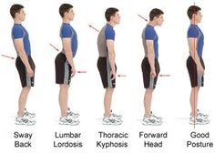 to Improve Posture? Posture Exercises to Correct Bad Posture. Good posture: do you have it, or do you ONLY think you have it? Use this as comparison.Good posture: do you have it, or do you ONLY think you have it? Use this as comparison. Posture Fix, Posture Exercises, Better Posture, Bad Posture, Improve Posture, Taller Exercises, Scoliosis Exercises, Kyphosis Exercises, Posture Help