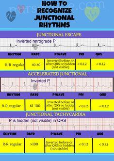 Junctional Rhythm Infographic