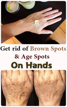 Get rid of the brown spots on hands with these 4 natural remedies - I Health She