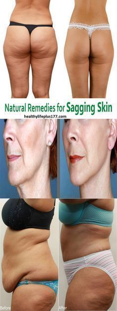 5 Effective home remedies for sagging skin