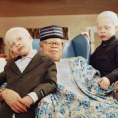 Albino man with albino sons