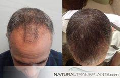 Regrow Hair   Hair Transplant Before and After
