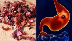 Pomegranate is amazing food, and it can help in the treatment of numerous infections of stomach and intestinal pain. The recipe we presen. Stomach Problems, Us Foods, Pomegranate, Health Tips, Health Fitness, Pudding, Desserts, Blog, Wordpress