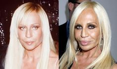 Donatella Versace before and after plastic surgery-womansday. Donatella Versace before and after plastic . Bad Celebrity Plastic Surgery, Botched Plastic Surgery, Bad Plastic Surgeries, Plastic Surgery Gone Wrong, Plastic Surgery Photos, Celebrity Surgery, Worst Celebrities, Celebs, Beautiful Celebrities