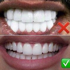 What do you think ? We all agree right ? #dentistry #odonto #dentist #dentista #dental #dentistrylife #dentalassistant  #teeth  #dentalsurgery #odontolove #enamel #hygiene #dentalschool #dentalhygienist #odontologia #dentes #instadentist #dentalhumor #dentalgram #healthyteeth #instateeth #dentalnurse #dentalphotogaphy #teethfaq for repost  #porcelain #makeover #instabeauty #whitening #whiteteeth #beauty