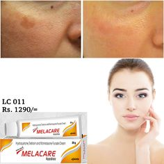 Melacare Cream For Dark Circles Sun Block. Acne Wrinkles Freckles For Orders Call Now : 077 845 4035 077 921 3001 OR Order online : http://ift.tt/2ciqya2 Price : 1290/=  Island wide Home Delivery Pay on Delivery Delivery Within 2 Working Days best solution for deep pigmentation and pimple markspatches 100% sure answer . no allergy ...just 3 weeks answer..island wide delivery available Melacare cream is designed for the purpose of healing itchiness redness and swelling stemming from…