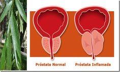 La próstata es un órgano que se encuentra en la parte baja del abdomen de los hombres y que comienza a generar problemas de salud cerca de los 45 años de edad.