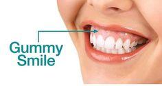 نلاحظ ان هناك حالات كثيرة يعانون من الخجل عندما يبتسمون و يضحكون بسبب ان جزء كبير من اللثة يكون ظاهرا. في #مركز_الترا_كير_الطبي  تستطيع الدكتورة نغم الواعظ معالجة و تجميل اللثة في أقل من ساعة و بأقل تكلفة لتشعرين بالثقة عندما تبتسمين. للاستفسار اكثر اتصل 024481111  #Uae #AD #instaabudhabi #amazingabudhabi #simplyabudhabi #myabudhabi #hollywoodsmile#veneers#dental#dermatology#cosmetics#inabudhabi#myabudhabilife #Dubai#hct#inabudhabi#mydubai #like4likes #like4likesalways #like4like #la#ca…