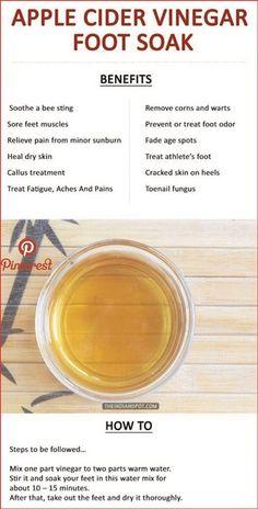 Apple Cider Vinegar Foot Soak Detox - Image Project - New Ideas Natural Cold Remedies, Natural Remedies For Anxiety, Herbal Remedies, Dry Feet Remedies, Sleep Remedies, Health Remedies, Foot Soak Vinegar, Foot Detox Soak, Diy Foot Soak