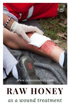 Raw honey can be used as an effective wound treatment. It has been shown to kill bacteria and improve healing for burn patients. Emergency First Aid, Emergency Preparation, Survival Food, Survival Skills, Survival Gear, Wound Care, Seasonal Allergies, Health Trends, Health Facts
