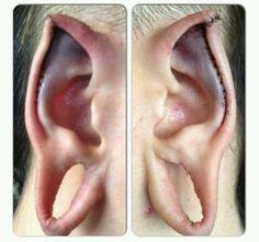 Fresh ear-pointing by Samppa Von Cyborg // instagram: @ samppavoncyborg #earpointing #elfears #bodymodification