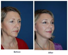 Brow Lift- Right, Full Brow Lift- Left Eyelid: Lower Lid Blepharoplasty with SOOF Deep Plane Facelift Laser Resurfacing: Eyes and Mouth Dr. Freeman's Makeovers Endoscopic Brow Lift, Co2 Laser Resurfacing, Eyelid Surgery, Full Brows, Beauty Skin, Eyes, Plane, Furniture, Aircraft