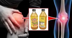 She Dipped Her Hand In Apple Cider Vinegar For 2 Weeks. When You Read You Will Do It Too! diy diy ideas health healthy living remedies remedy arthritis pain relief life hacks healthy lifestyle apple cider vinegar good to know viral Apple Cider Vinegar Remedies, Apple Vinegar, Braggs Apple Cider, Natural Remedies For Arthritis, Natural Cures, Dieta Detox, Health Remedies, Pain Relief, The Cure