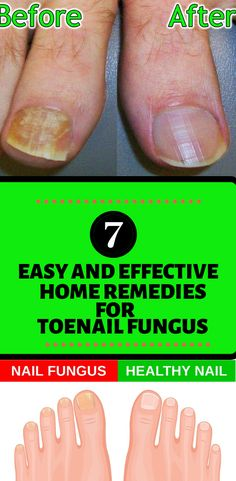 7 Home Remedies For Toenail Fungus|  This fungal infection is caused by various fungi, such as Trichophyton rubrum, which thrive in the moist conditions that can occur between your toes. You can pick up these fungi from the moist floors of showers or locker rooms, or by sharing towels, etc.  Home Remedies For Toe Nail Fungus cure| Home Remedies For Toe Nail Fungus cure fast| Home Remedies For Toe Nail Fungus cure toenails| Home Remedies For Toe Nail Fungus essential oils|