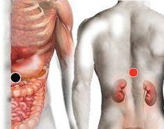 dieta per reflusso laringofaringeo
