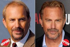 Kevin Costner Hair Transplant - Lots of Celebrities like Kevin Costner has done successful hair transplant, Hair implant. Kevin Costner, Stop Hair Loss, Prevent Hair Loss, Famous Bald Men, Receding Hairline Styles, Celebrity Hairstyles, Cool Hairstyles, Hair Transplant Women, Sexy Tattoos For Women