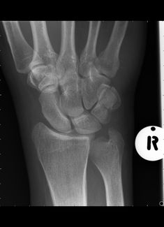 Pisiform fracture is uncommon type of fracture involving the carpal bones.  https://radiopaedia.org/articles/pisiform-fracture
