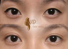 Asian boston eyelid surgery