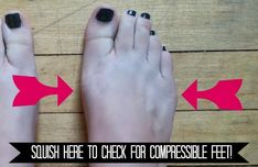 This post has generated thousands and thousands of hits from dancers all over the world. I'm thrilled and humbled! This has ins. Ankle Flexibility, Ballet Stretches, Ballet Feet, Toe Length, Flat Feet, Pointe Shoes, Toe Shape, Type, Learning