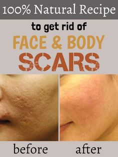 100% natural recipe to get rid of face and body scars.