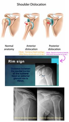 Anterior vs Posterior Shoulder dislocation on X ray . Radiology Student, Radiology Imaging, Medical Imaging, Human Skeleton Anatomy, Shoulder Dislocation, Radiologic Technology, Rad Tech, Nursing Tips, Anatomy And Physiology