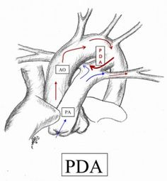 patent ductus arteriosus  pda  is a  heart problem that