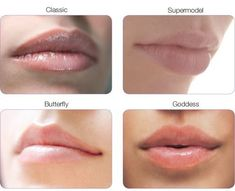Lip augmentation with dermal fillers like juvederm and restylane and fat transfer. Lip Implants, Lip Augmentation, Botox Fillers, Lip Fillers, Facial Fillers, Cosmetic Fillers, Dermal Fillers Lips, Lip Types, Types Of Lips Shape