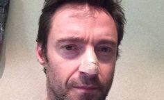 Hugh Jackman gets cancer treatment - http://www.freshcancernews.com/hugh-jackman-gets-cancer-treatment/