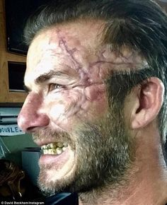 Let's face it: David Beckham recently shared a shot of himself sporting prosthetics on the...