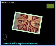 Sinusitis Or Cold 140322 - Cure Sinusitis