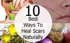 10 Ways To Heal Scars Naturally