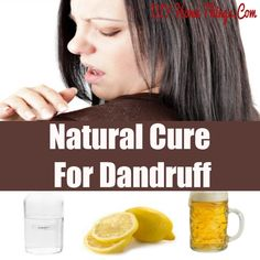 Natural Cure For Dandruff | MeSoCary