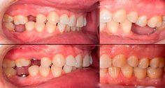 Протезирование зубов в Мисто Дент