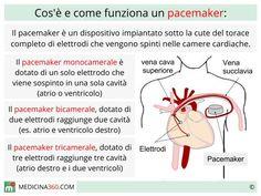 Cosa è e come funziona un pacemaker