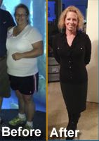 Melissa Brewer struggled with late-night binge eating, increasing health risks, and an initial procedure through another surgeon gone wrong; but after her Sleeve Revision surgery performed by Dr. Nilesh Patel, Melissa is now enjoying life pain and guilt-free!  http://texasbariatricspecialists.com/melissa-gastric-sleeve-surgery-revision-san-antonio/