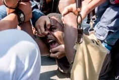 #WestPapua student #ObiKogoya brutally tortured by #Indonesia police for supporting full #MSG membership #WP4MSG