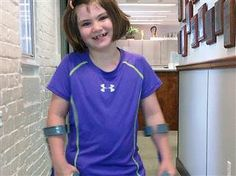 7-year-old Boston bombing victim dancing with new leg - TODAY.com