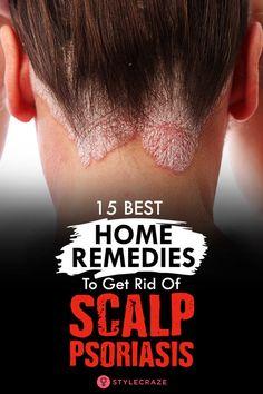 12 Best Home Remedies To Improve Scalp Psoriasis Effectively The post 12 Best Home Remedies To Improve Scalp Psoriasis Effectively & Schuppenflechte appeared first on Problème de peau . Home Remedies For Psoriasis, Scalp Psoriasis Treatment, What Is Psoriasis, Psoriasis Diet, Eczema Remedies, Health Remedies, Natural Remedies, Hair Remedies, Hair