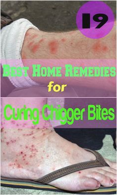 homeremedyshop:  19 Best Home Remedies for Curing Chigger Bites