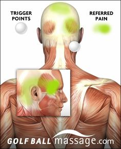 When these trigger points have direct and steady pressure you can find relief in the referred pain areas.