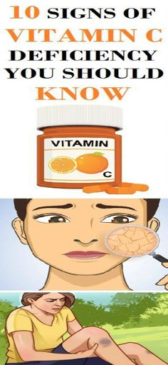10 SIGNS OF VITAMIN C DEFICIENCY YOU SHOULD KNOW!