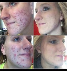 Do you have problems with your skin? Is your outside beauty bringing you down? Her name is Kayla and she used Greens, Hair Skin and Nails and ONE Facial Wrap. Are you ready to take control of your skin?  www.wrapswithmarian.com #hairskinandnails #greens #Hydrate #facialwrap