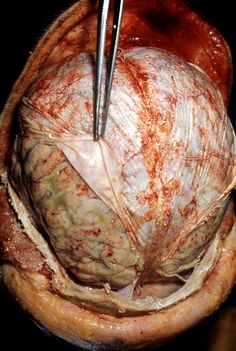 In this picture you can see reasonably well how closely adherent the dura is to both the brain and the skull (you can see how close it is to the skull near the bottom of the picture).