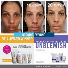 What an amazing product. Imagine what it could do for you! #RodanAndFields #Melasma