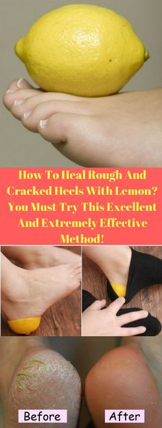 How To Heal Rough And Cracked Heels With Lemon? You Must Try This Excellent And Extremely Effective Method!