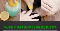 Effective Remedy To Cure Cracked Heels Using Lemons