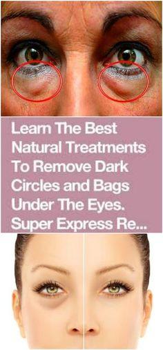 Remove Dark Circles & Under Eye Bags & Baking Soda & Lemon! – Natural Healthy World Makeup Tricks, Diy Makeup, Makeup Ideas, Beauty Makeup, Dark Circles Under Eyes, Eye Circles, Make-up-tipps Und Tricks, Beauty Care, Beauty Hacks